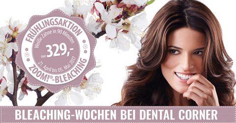 Bild Bleaching-Aktion bei Dental Corner - Zahnarzt Frankfurt