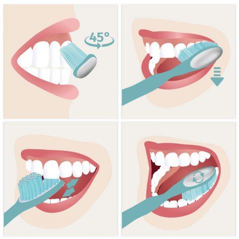 Schaubild Zahnputztechniken