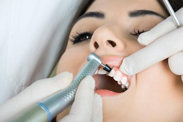 Bild professionelle Zahnreinigung