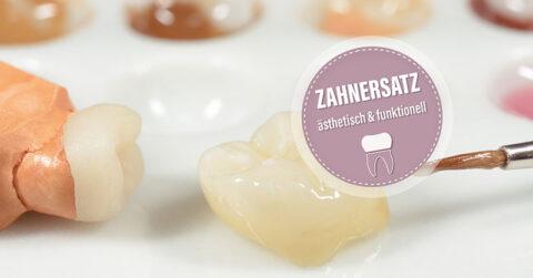 Zahnersatz: Zahnarzt Frankfurt